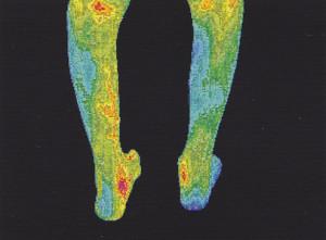 Po 14 dnech každodenního používání Amethyst BioMat je dolní končetina kompletně prohřátá