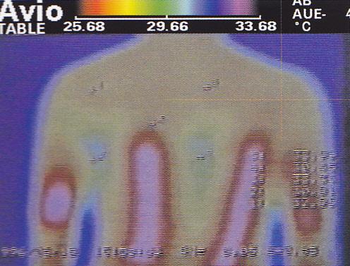 Takto vypadá prohřátí běžnou elektrickou dečkou. Teplo zůstává pouze na povrchu a neprohřívá celou plochu těla. Navíc je zde možnost popálení.